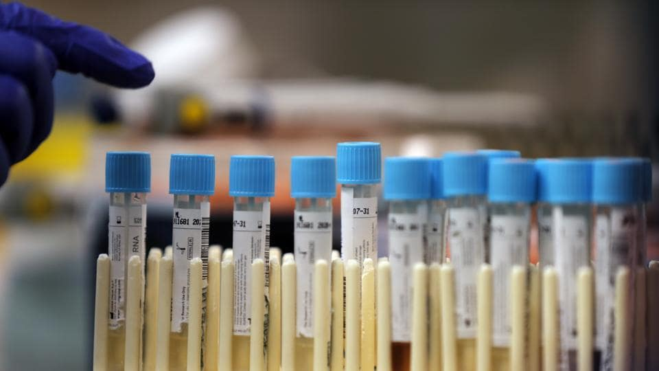 Vials with samples taken for the new coronavirus are counted before they are prepared for RNA testing at the molecular pathology lab at Tulane University School of Medicine in New Orleans.
