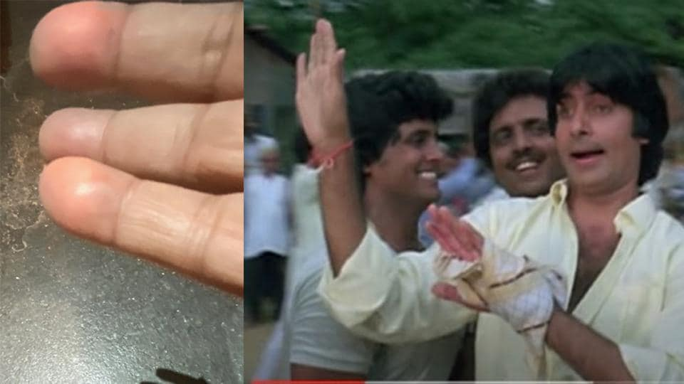 Amitabh Bachchan shows the improvement after his finger injury which made him camouflage it in his films.