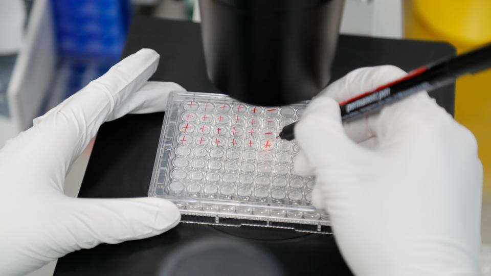 A scientist examines Covid-19 infectedcellsduring research for a vaccine at a laboratory in Saint Petersburg, Russia on Wednesday.