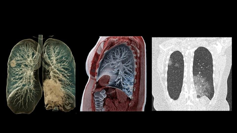 The images taken with the Somatom go.Up computer tomograph from Siemens Healthineers show the lung changes associated with the confirmed coronavirus disease (COVID-19), as seen in this undated photograph. The densifications correspond to inflammatory processes in the lung tissue. The images (left and middle) use a visualization technique that is also used in the film industry.