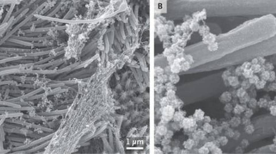 An en face image (Panel A) shows an infected ciliated cell with strands of mucus attached to the cilia tips. At higher magnification, an image (Panel B) shows the structure and density of SARS-CoV-2 virions produced by human airway epithelial cells.
