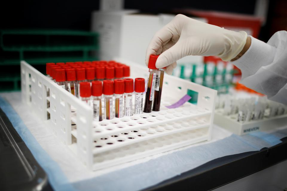 A health worker takes test tubes with plasma and blood samples after a separation process in a centrifuge during a coronavirus disease (COVID-19) vaccination study at the Research Centers of America, in Hollywood, Florida, U.S., September 24, 2020.