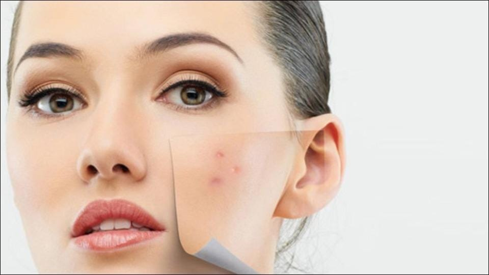 Ways to clear up acne fast